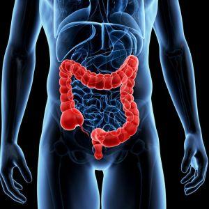 Cancerul de colon ucide! Testează-te!